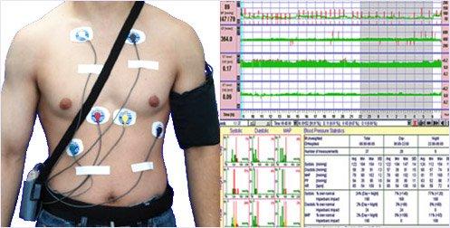 Холтеровский мониторинг АД и ЭКГ. На фото холтер экг на пациенте, наложены одноразовые самоклеющиеся электроды и манжета для измерения АД, на поясе кобура, в которой находится регистратор ЭКГ, справа результаты обследования по Холтеру.