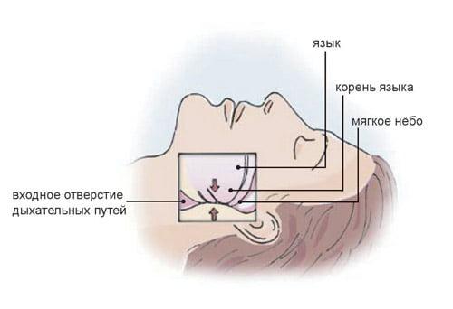 Сон пациента - обструктивное апноэ сна
