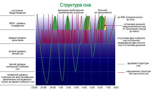 Фазы сна человека, циклы сна, REM-уровень, сновидения, глубокий сон, остановка дыхания, фазы глубокого сна, нарушенная структура сна, механизм пробуждения, структура сна