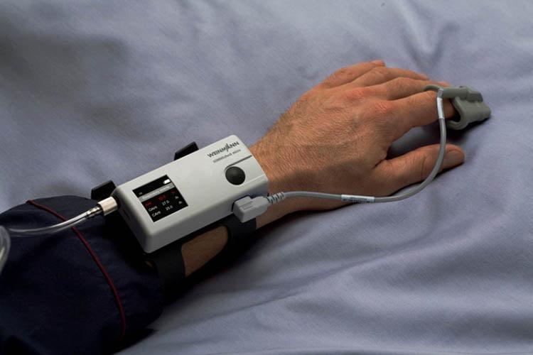 Обследование на дому: аппарат для скрининга апноэ на дому SOMNO check micro одет на запястье пациента, подключен пульсоксиметр и носовая канюля для контроля потока дыхания.
