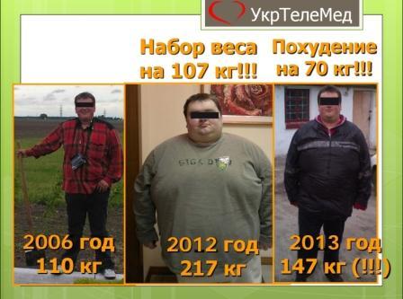 Пациент: результат работы в ночную смену - набор веса 107 кг за 6 лет. Похудение за 1 год сипап-терапии на 70 кг.
