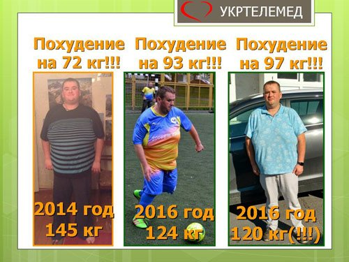 Наш пациент похудел на 97 кг за 4 года сипап-терапии.
