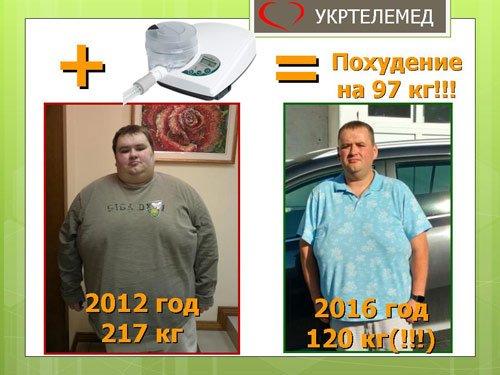 Похудение нашего пациента с 217 кг до 120 кг за 4 года благодаря сипап-аппарату.