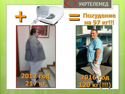 Пациент: похудение на 97 кг с сипап-аппаратом.