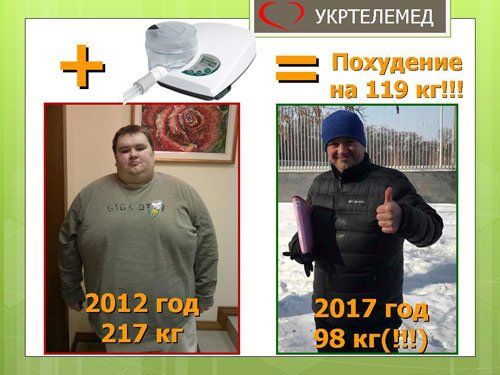 Пациент: похудение с 217 кг до 98 кг (на 119 кг) за 5 лет использования сипап-аппарата.