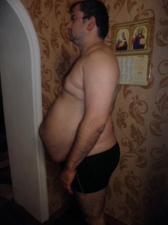 Руслан, 38 лет, врач. Рост 180см, вес 123кг : Считал себя здоровым человеком. Субъективно мешал лишний вес, очень сильная , невыносимая временами дневная сонливость, даже 5 раз засыпал за рулём на несколько секунд.