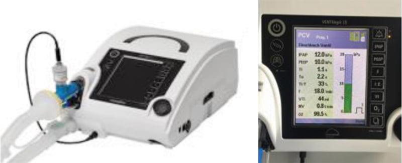 Подключение кислородного датчика к аппарату ИВЛ VENTIlogic LS