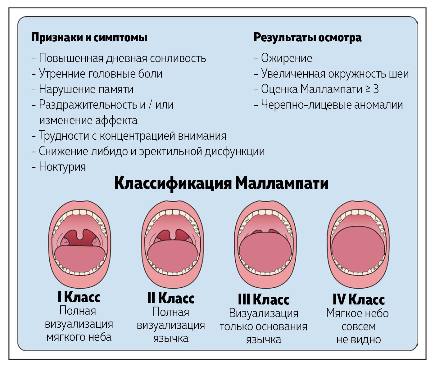 Рисунок 1. Обструктивное апноэ во сне: симптомы и диагностика.