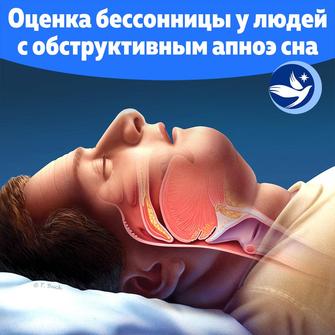Бессонница у пациентов с обструктивным апноэ во сне