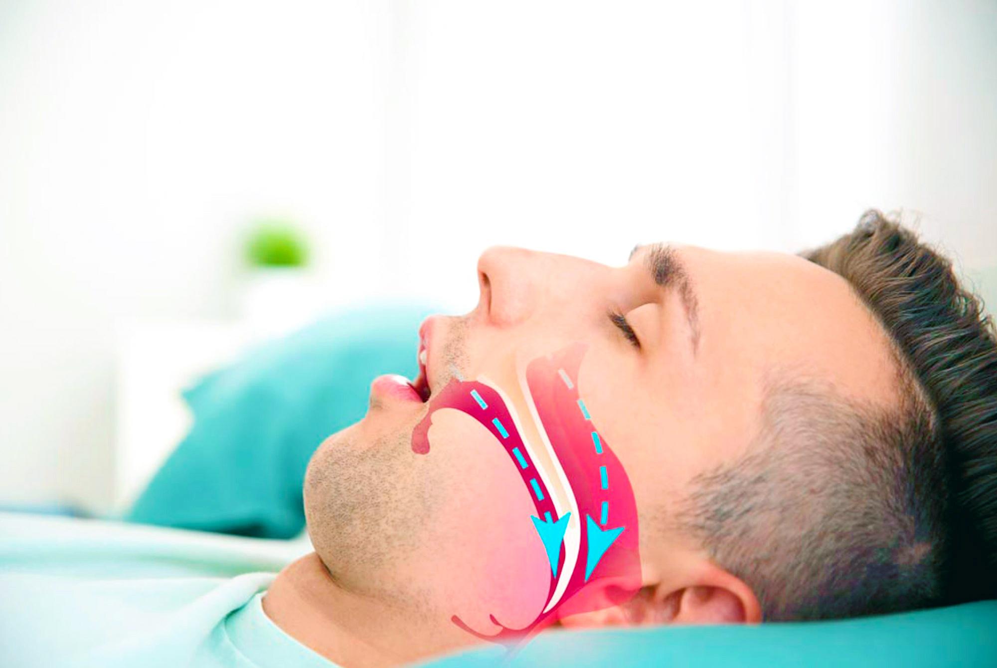Можно ли умереть от апноэ во сне? Типы, симптомы и методы лечения апноэ сна