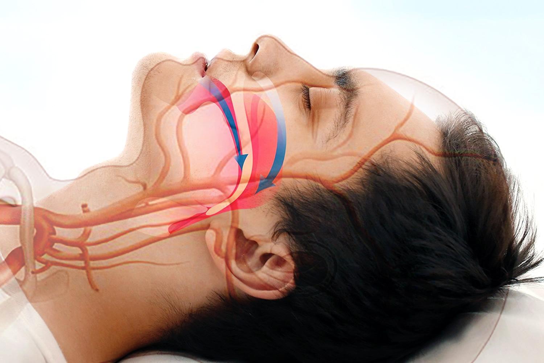 Тяжелое апноэ сна может повредить ключевые кровеносные сосуды