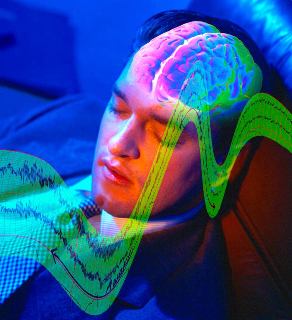 Что вызывает нарколепсию: причины. Мужчина спит, мозг.