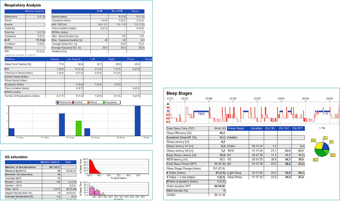 Полисомнограф: анализ данных и отчет